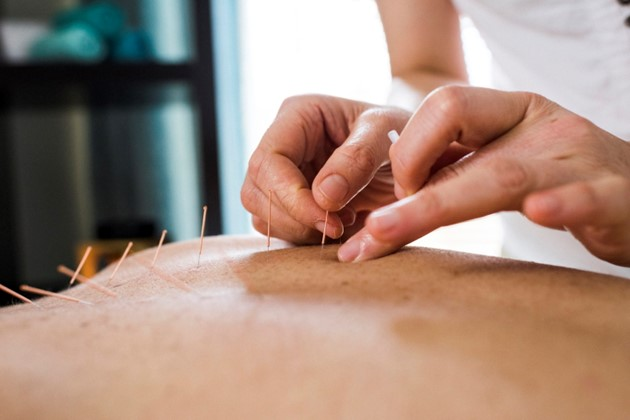 Acupunture during pregnancy